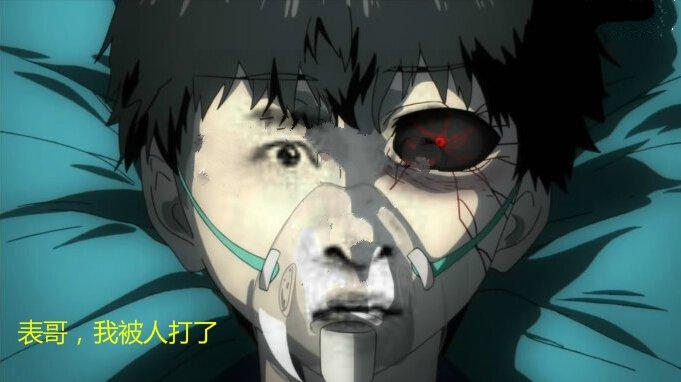 尔康版东京食尸鬼金木躺在医院:表哥,我被人打了